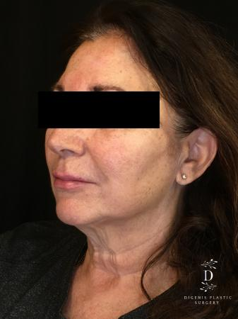 Facelift: Patient 4 - Before Image 3
