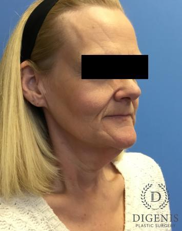 Facelift: Patient 3 - Before Image 2