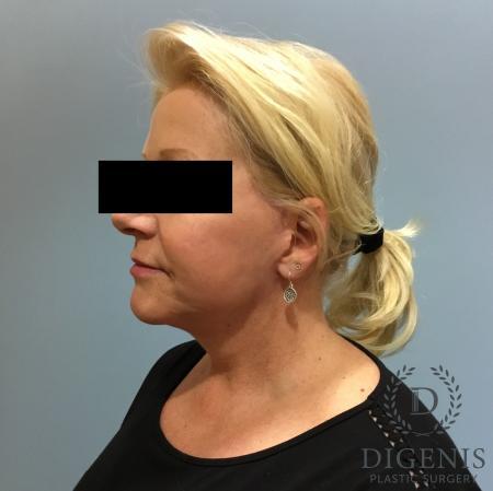 Facelift: Patient 12 - After Image 4