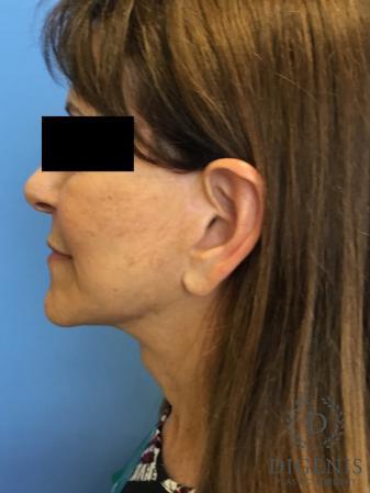 Facelift: Patient 6 - After Image 5