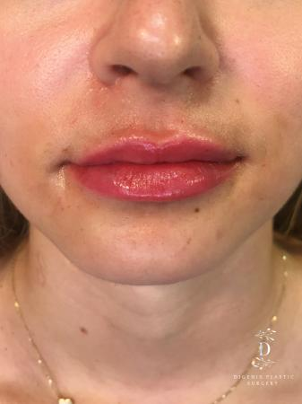 Injectables: Patient 2 - After Image 1