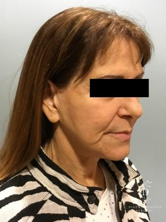 Facelift: Patient 6 - Before Image 2