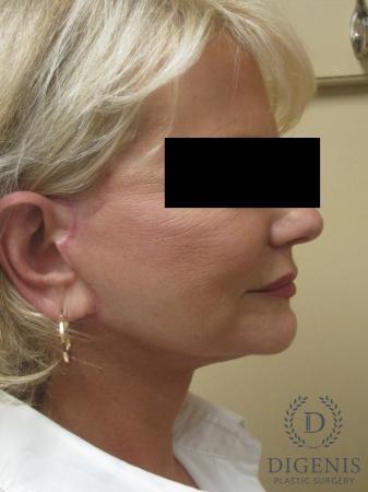 Facelift: Patient 14 - After Image 3