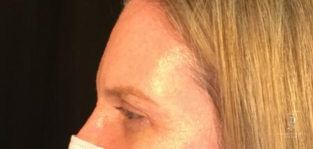 Eyelid Surgery: Patient 6 - After Image 3
