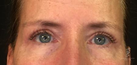 Eyelid Surgery: Patient 1 - After Image