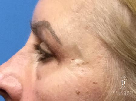 Eyelid Surgery: Patient 5 - After Image 5