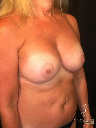 Breast Lift With Implants: Patient 8 - After Image 2