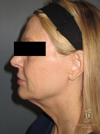 Facelift: Patient 5 - Before and After Image 5