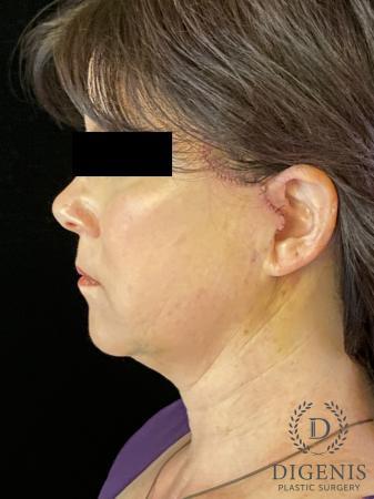 Digenis Refresh Lift: Patient 4 - After Image 5