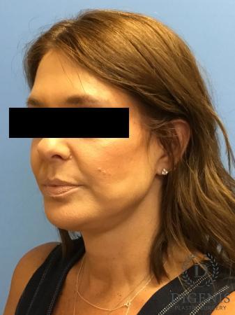 Facelift: Patient 10 - After Image 4