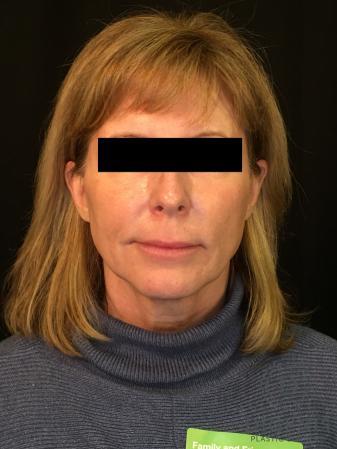 Digenis Refresh Lift: Patient 3 - After Image 1