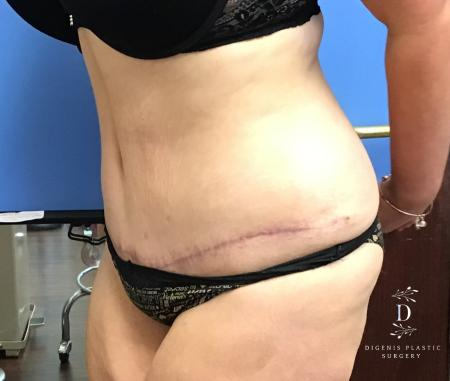 Abdominoplasty: Patient 5 - After Image 4