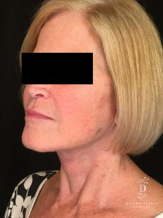 Facelift: Patient 1 - After Image 4