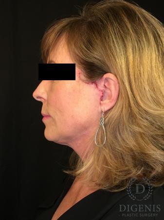 Digenis Refresh Lift: Patient 3 - After Image 5