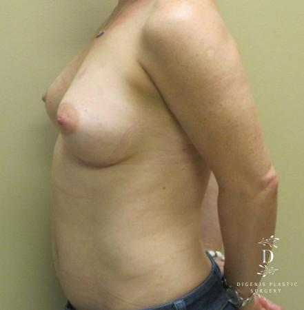 Breast Lift With Implants: Patient 1 - After Image 5