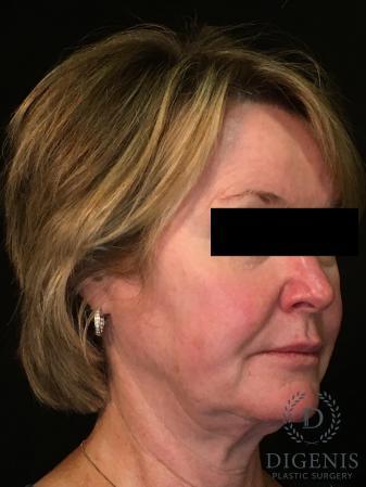Digenis Refresh Lift: Patient 1 - Before Image 2
