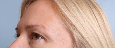 Eyelid Surgery: Patient 9 - Before Image 3