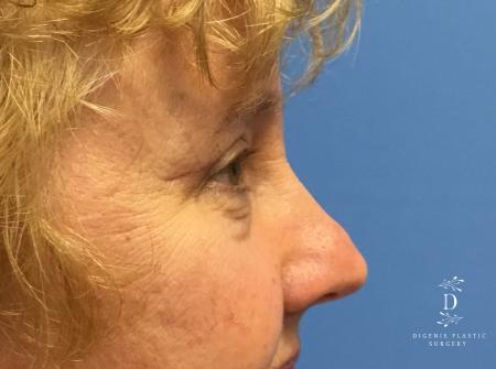 Eyelid Surgery: Patient 3 - After Image 3