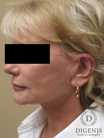 Facelift: Patient 14 - After Image 4