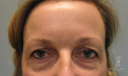 Eyelid Surgery: Patient 8 - Before Image