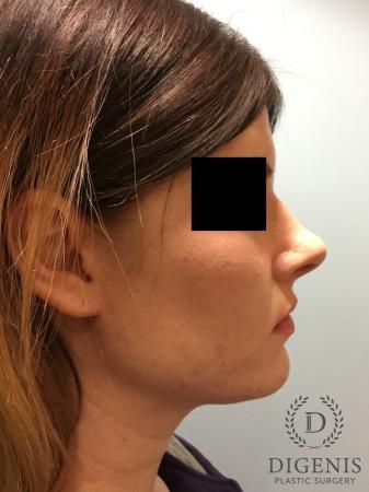 Rhinoplasty: Patient 2 - Before Image 3