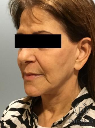 Facelift: Patient 6 - Before Image 4