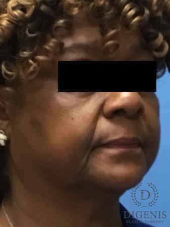 Facelift: Patient 8 - Before Image 2