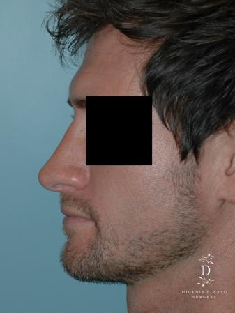 Rhinoplasty: Patient 10 - After Image 4