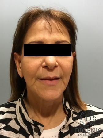 Facelift: Patient 6 - Before Image 1