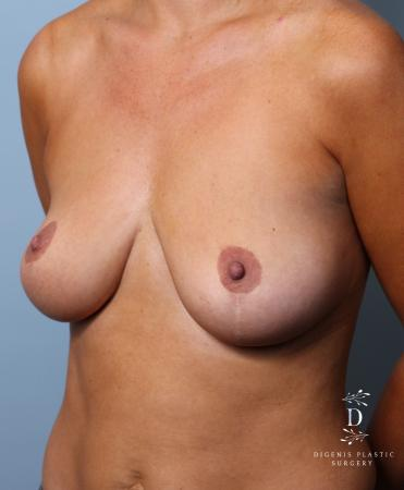 Breast Augmentation: Patient 10 - Before Image 4
