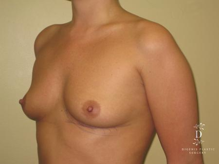 Breast Augmentation: Patient 4 - Before and After Image 3