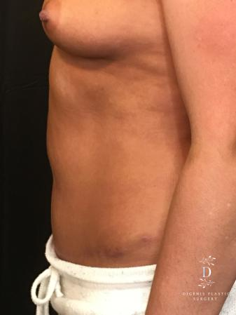 Abdominoplasty: Patient 1 - After Image 5