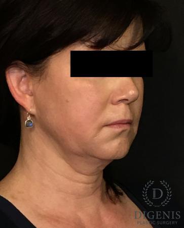 Digenis Refresh Lift: Patient 4 - Before Image 2