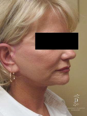 Facelift: Patient 14 - After Image 2