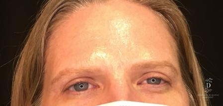 Eyelid Surgery: Patient 6 - After Image