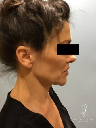Facelift: Patient 9 - Before and After Image 5