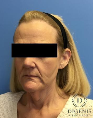 Facelift: Patient 3 - Before Image 4