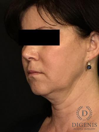 Digenis Refresh Lift: Patient 4 - Before Image 4