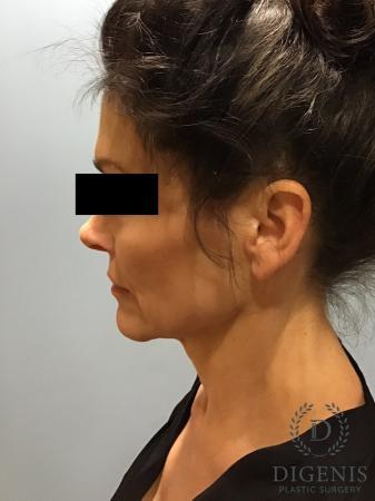 Facelift: Patient 9 - Before Image 3