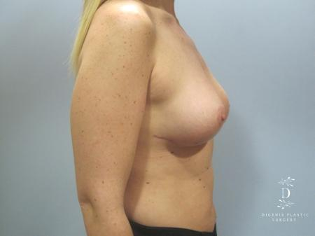 Breast Lift: Patient 7 - After Image 3