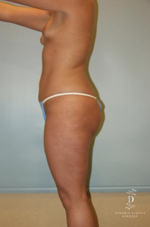 Liposuction: Patient 5 - Before and After Image 4