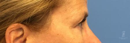 Eyelid Surgery: Patient 1 - Before Image 3