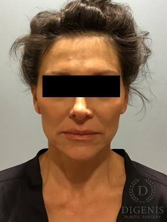 Facelift: Patient 9 - Before Image