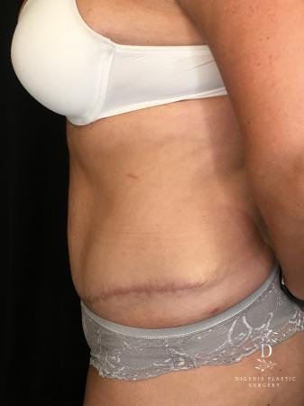 Abdominoplasty: Patient 6 - After Image 3