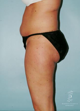Liposuction: Patient 7 - Before Image 3
