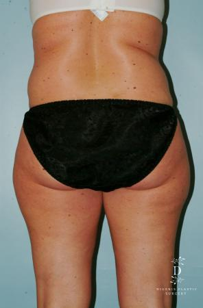 Liposuction: Patient 7 - Before and After Image 4