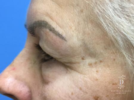 Eyelid Surgery: Patient 5 - Before and After Image 5