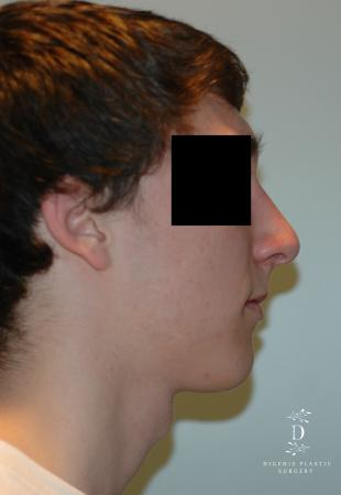 Rhinoplasty: Patient 9 - After Image 3