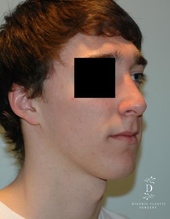 Rhinoplasty: Patient 9 - After Image 2