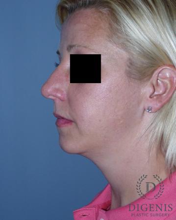 Rhinoplasty: Patient 3 - Before Image 5